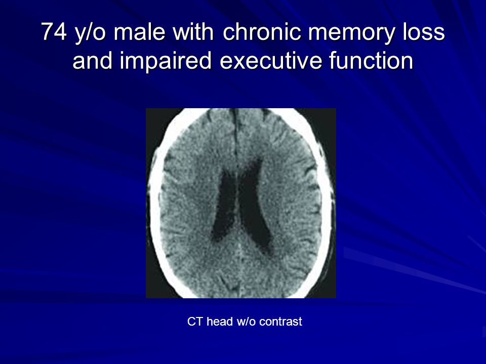 74 y/o male with chronic memory loss and impaired executive function