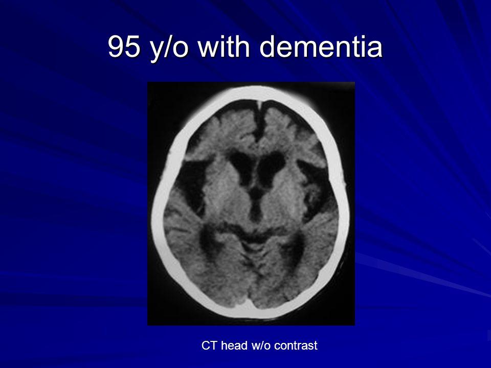 95 y/o with dementia CT head w/o contrast