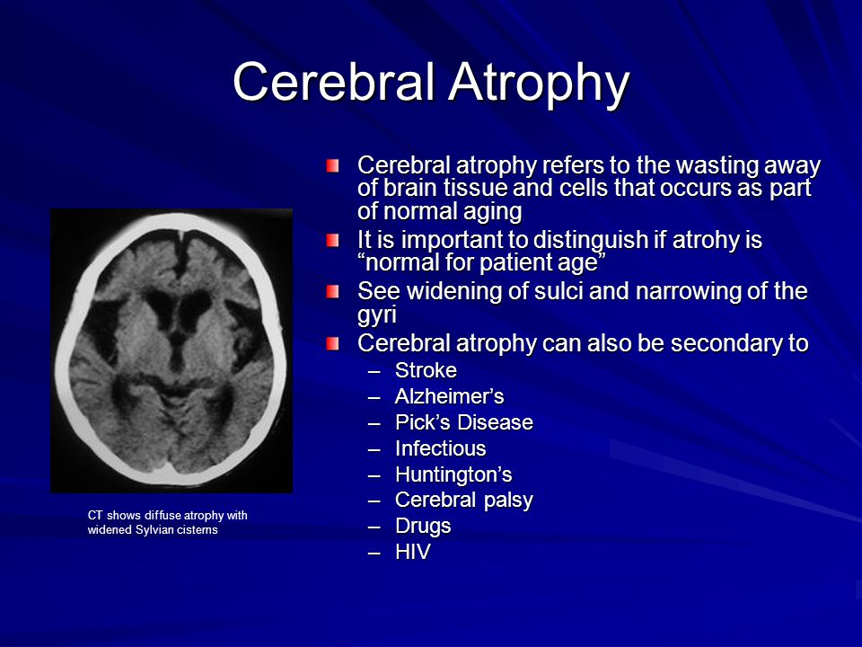 Cerebral Atrophy Cerebral atrophy refers to the wasting away of brain tissue and cells that occurs as part of normal aging.
