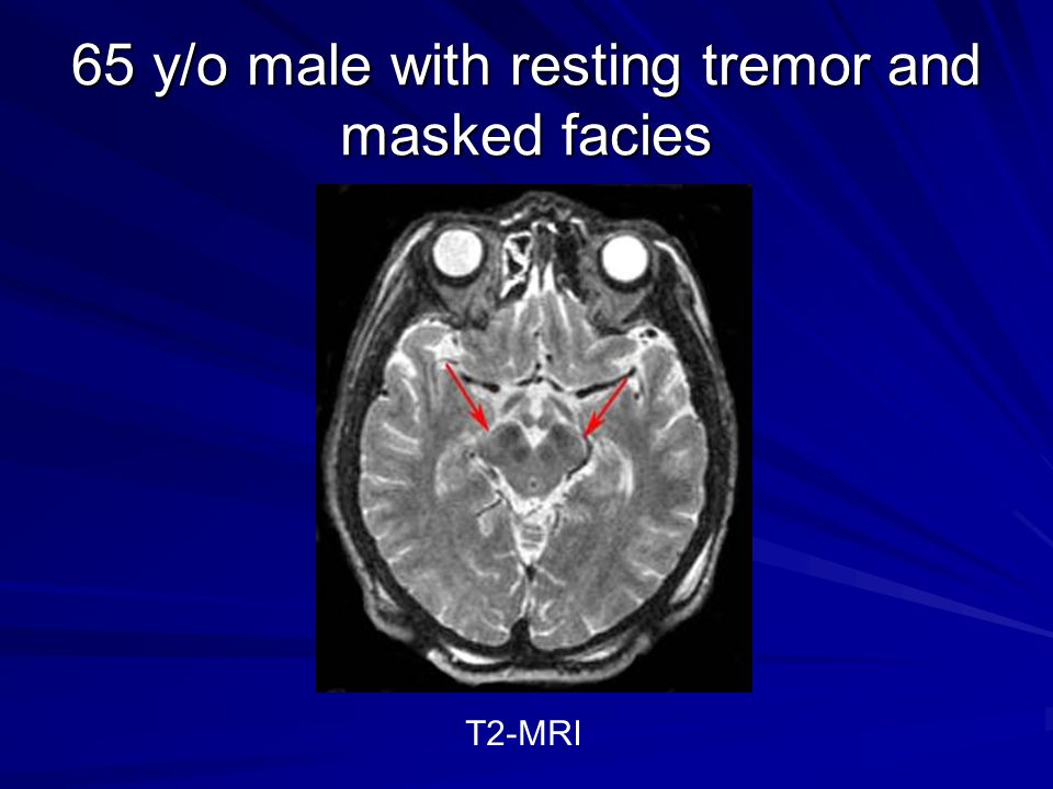 65 y/o male with resting tremor and masked facies
