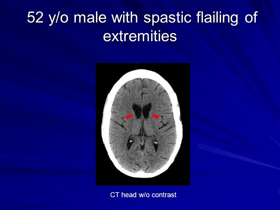 52 y/o male with spastic flailing of extremities