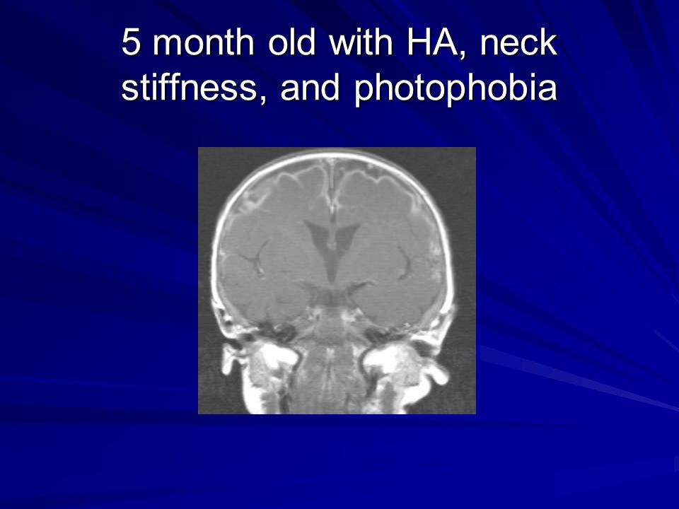 5 month old with HA, neck stiffness, and photophobia