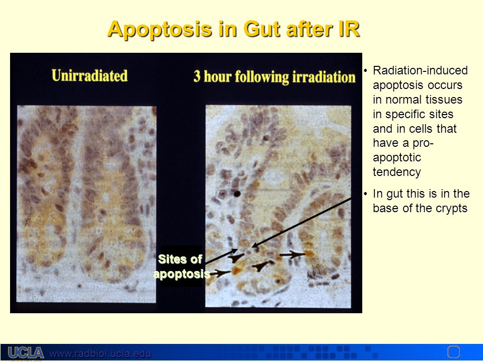 Apoptosis in Gut after IR