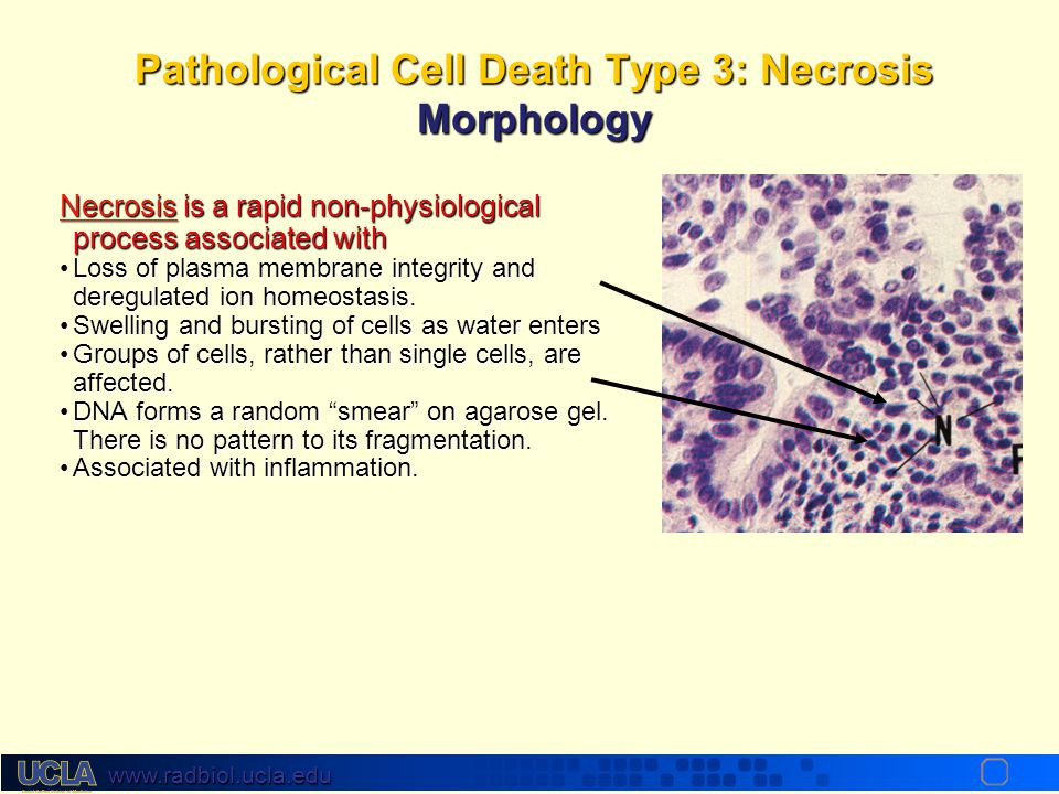 Pathological Cell Death Type 3: Necrosis Morphology