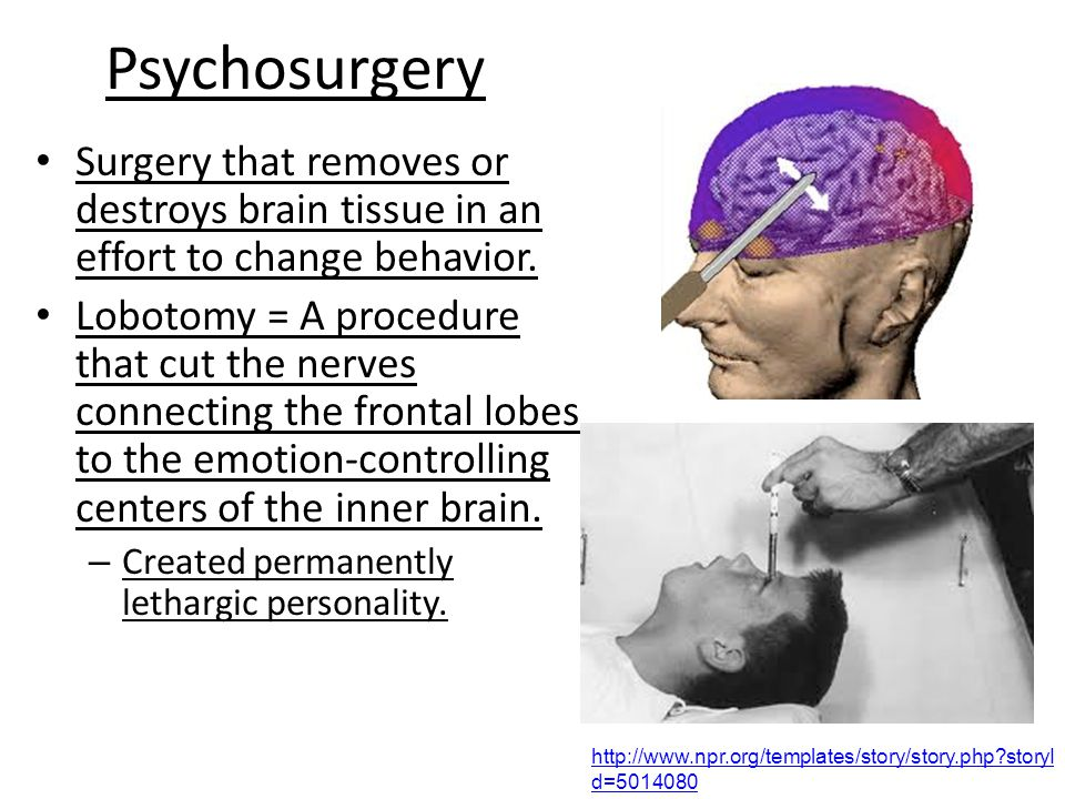 Psychosurgery Surgery that removes or destroys brain tissue in an effort to change behavior.