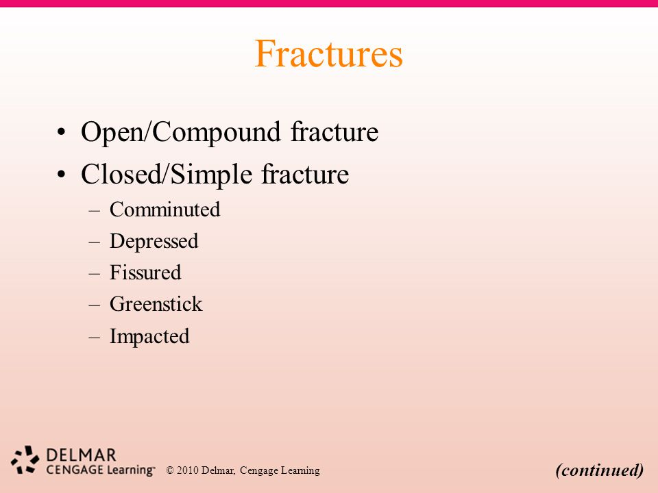 Fractures Open/Compound fracture Closed/Simple fracture Comminuted
