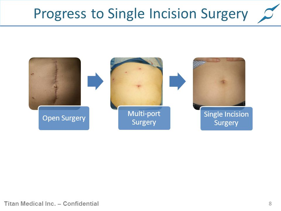 Progress to Single Incision Surgery