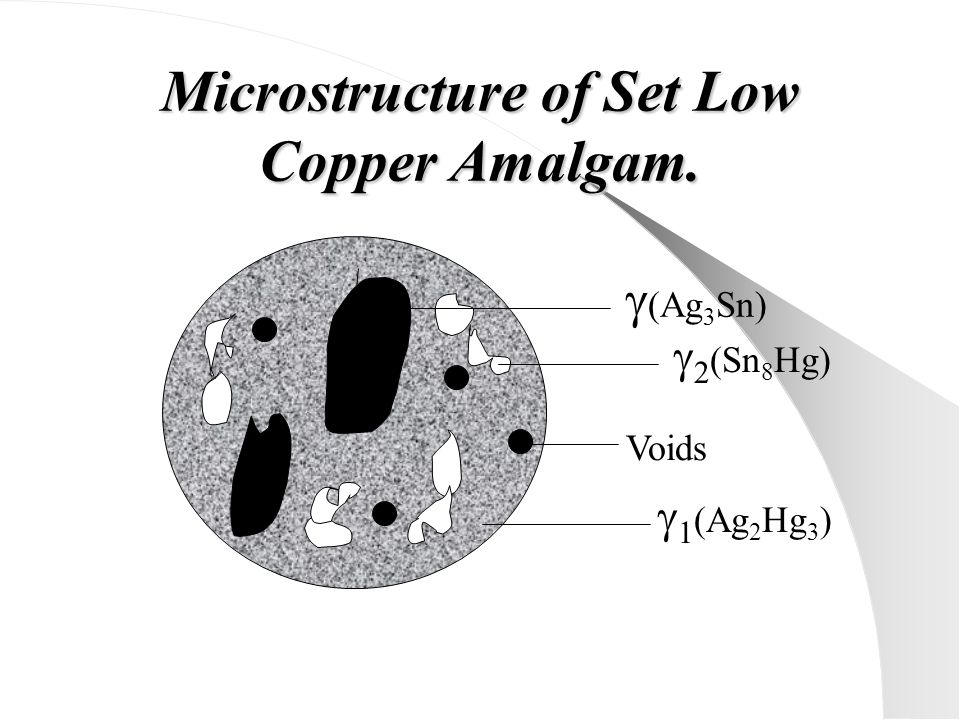 Microstructure of Set Low Copper Amalgam.