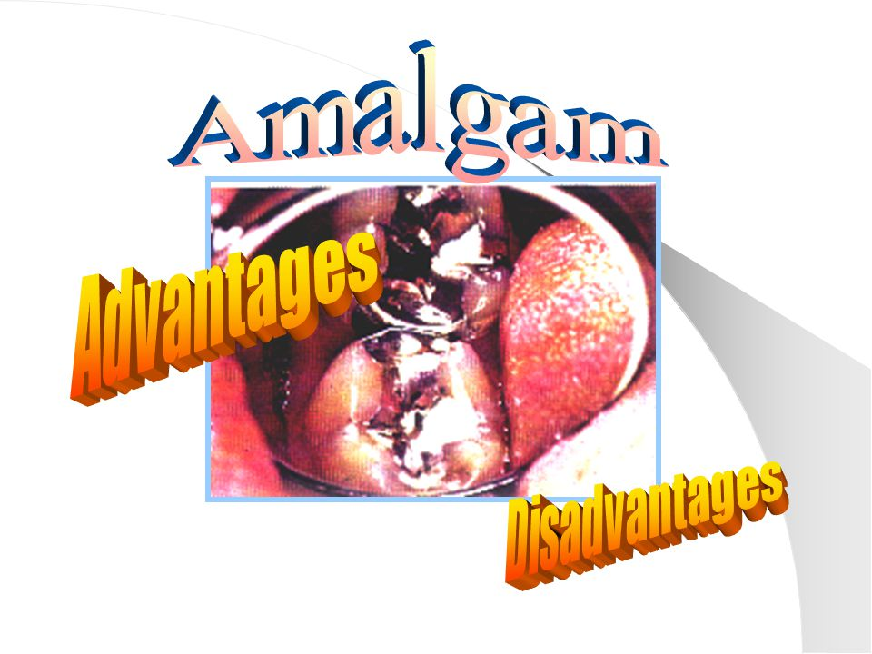 Amalgam Advantages Disadvantages