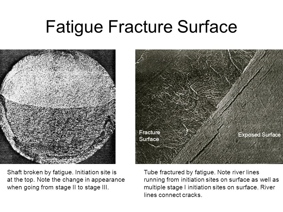 Fatigue Fracture Surface