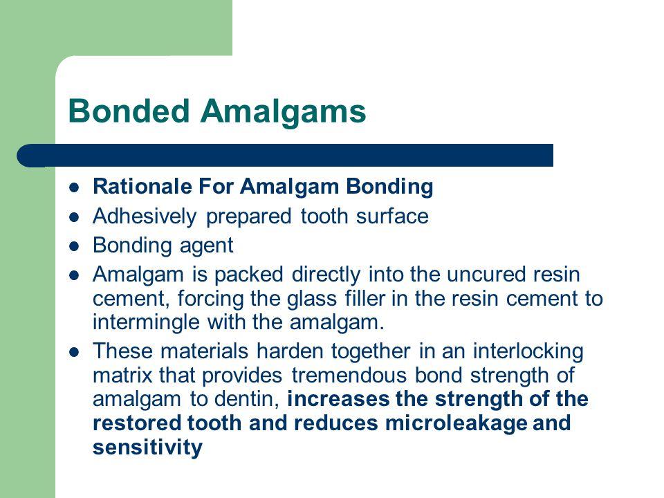 Bonded Amalgams Rationale For Amalgam Bonding