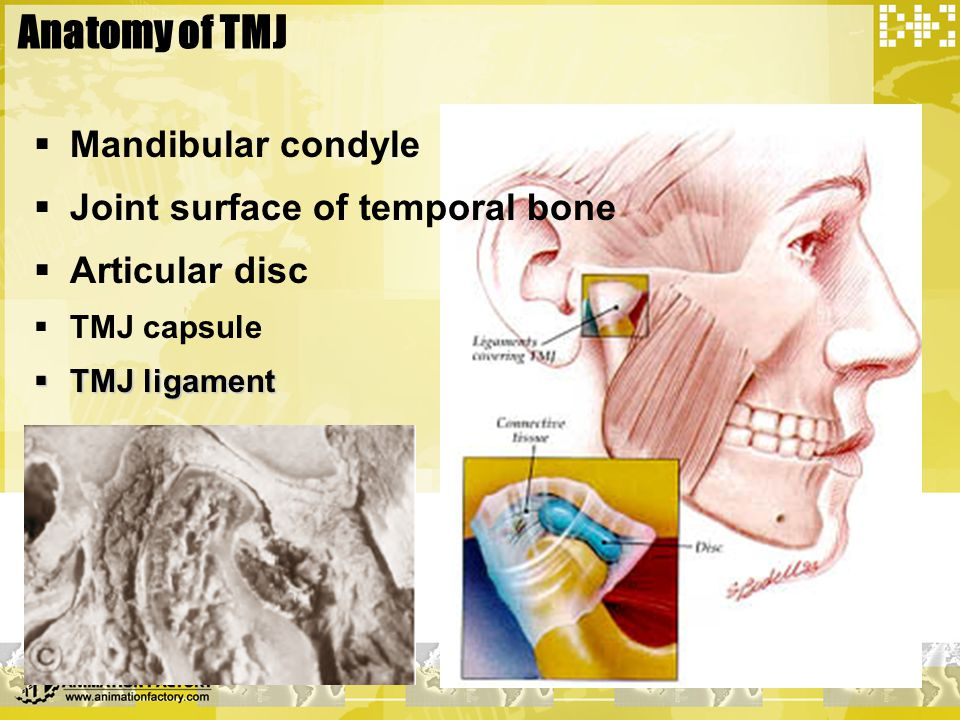Anatomy of TMJ Mandibular condyle Joint surface of temporal bone