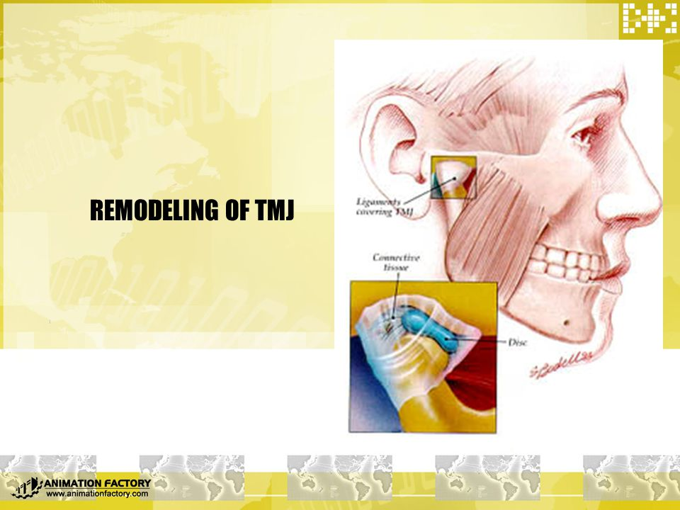 REMODELING OF TMJ