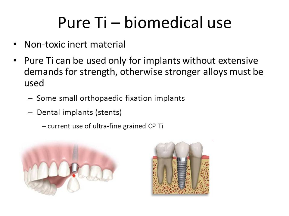 Pure Ti – biomedical use