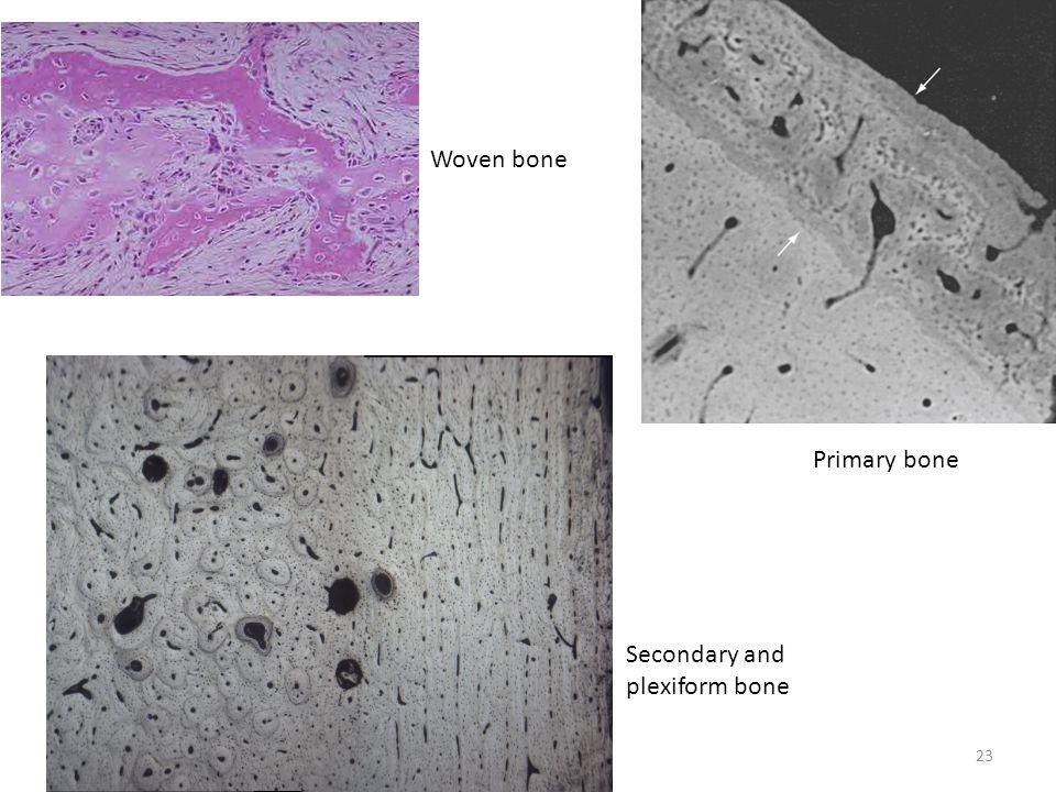 Woven bone Primary bone Secondary and plexiform bone