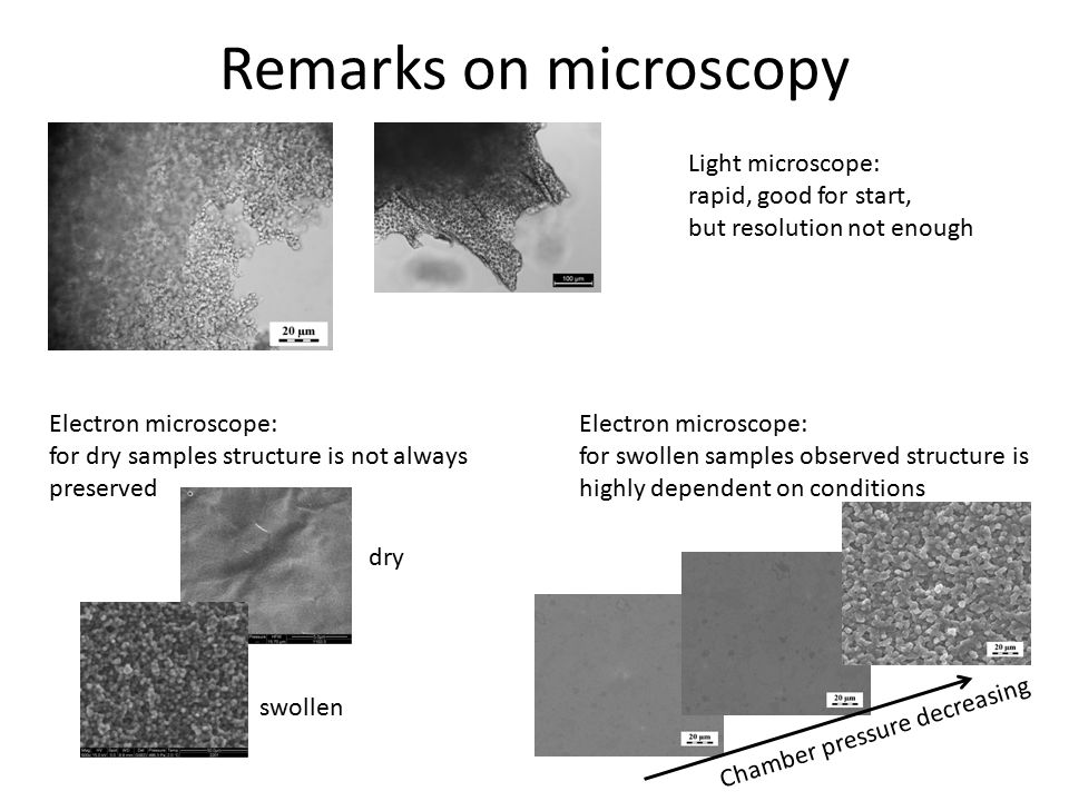 Remarks on microscopy Light microscope: rapid, good for start,