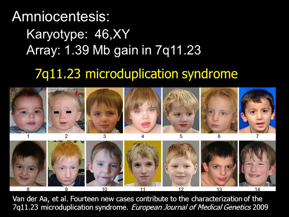 7q11.23 microduplication syndrome