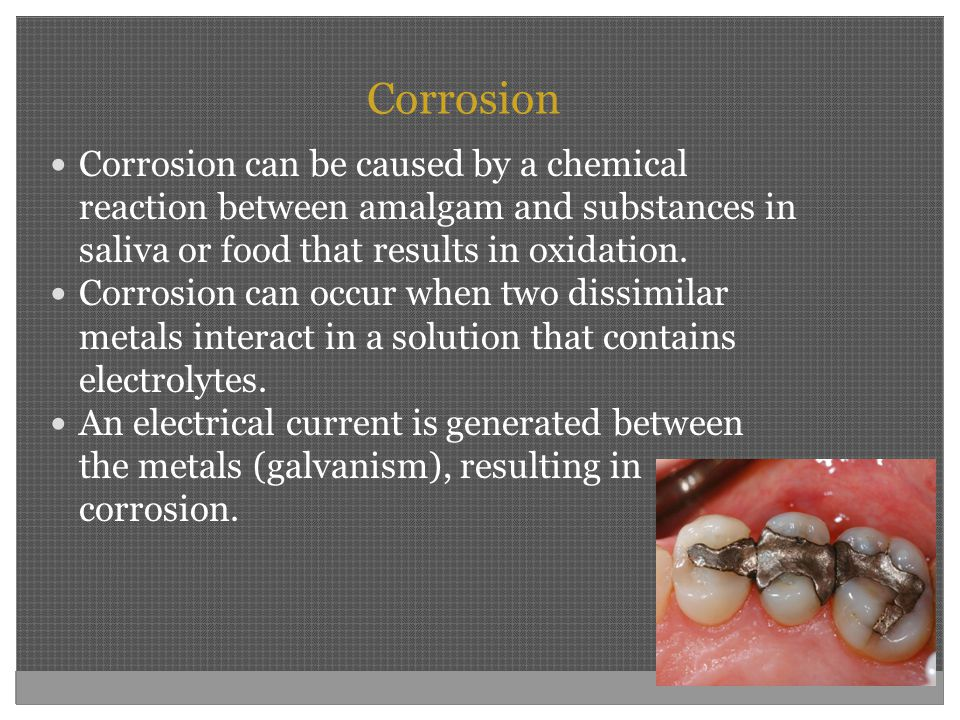 Corrosion Corrosion can be caused by a chemical reaction between amalgam and substances in saliva or food that results in oxidation.
