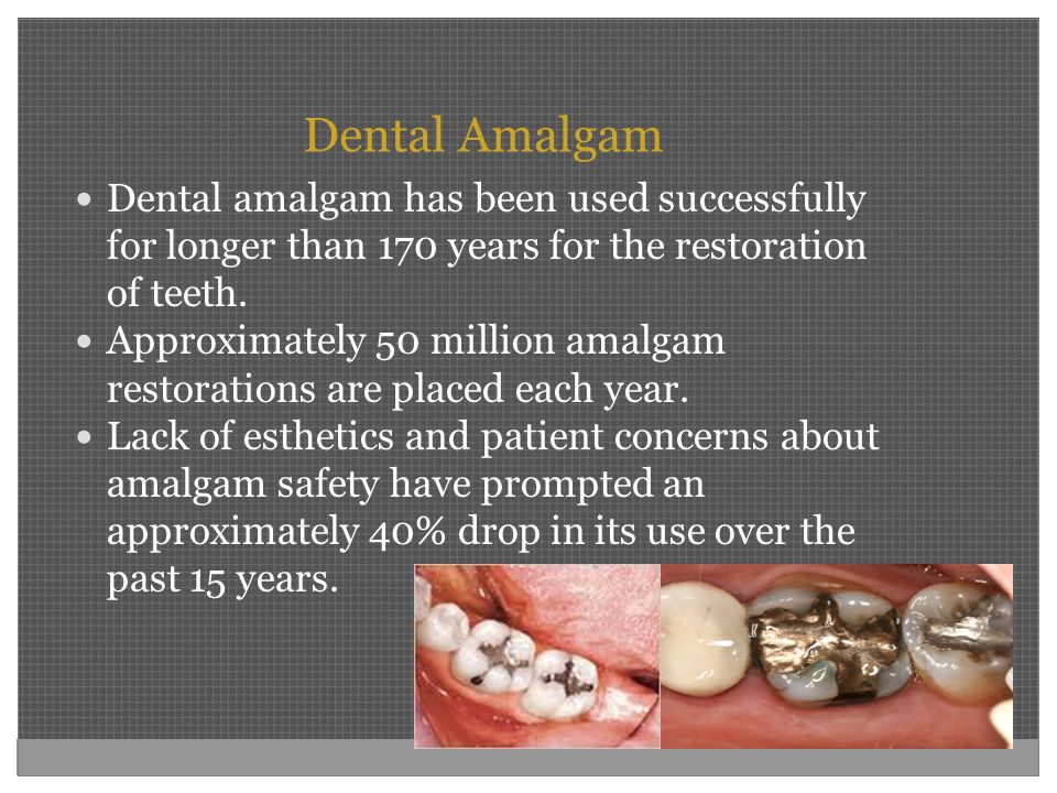 Dental Amalgam Dental amalgam has been used successfully for longer than 170 years for the restoration of teeth.