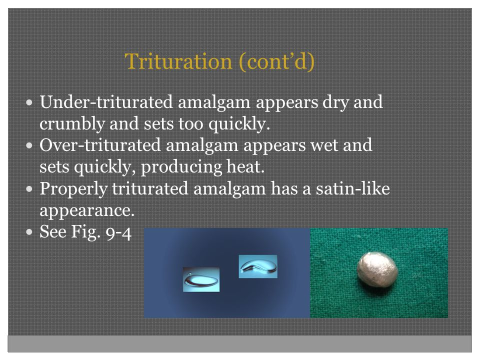Trituration (cont'd) Under-triturated amalgam appears dry and crumbly and sets too quickly.