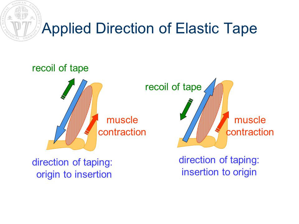 Applied Direction of Elastic Tape