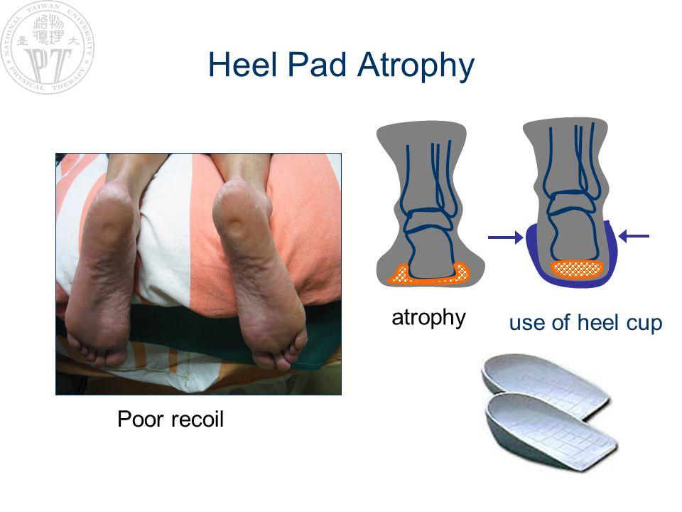 Heel Pad Atrophy atrophy use of heel cup Poor recoil