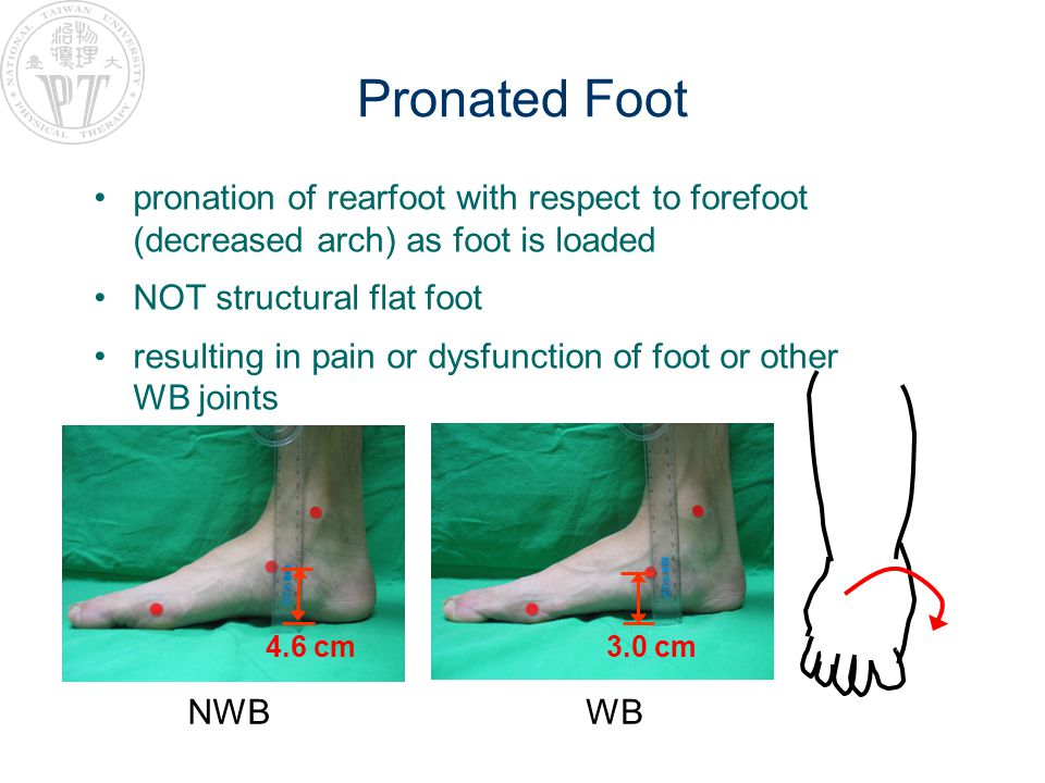 Pronated Foot pronation of rearfoot with respect to forefoot (decreased arch) as foot is loaded. NOT structural flat foot.