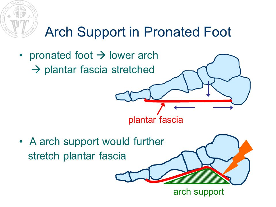 Arch Support in Pronated Foot