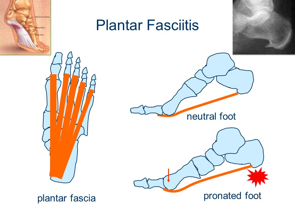 Plantar Fasciitis neutral foot pronated foot plantar fascia