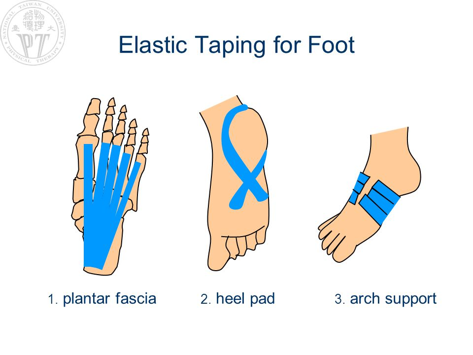 Elastic Taping for Foot
