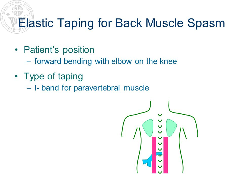 Elastic Taping for Back Muscle Spasm