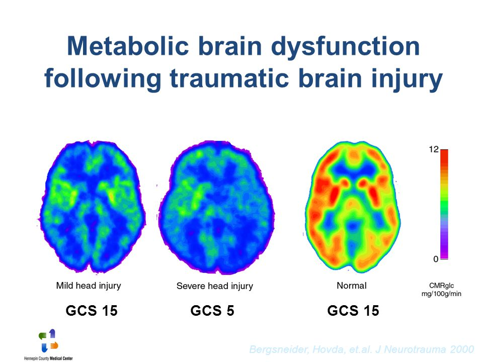 Metabolic brain dysfunction following traumatic brain injury