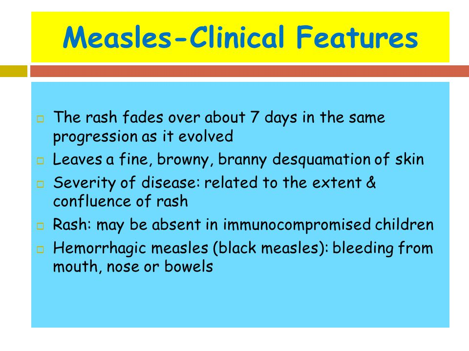 Measles-Clinical Features