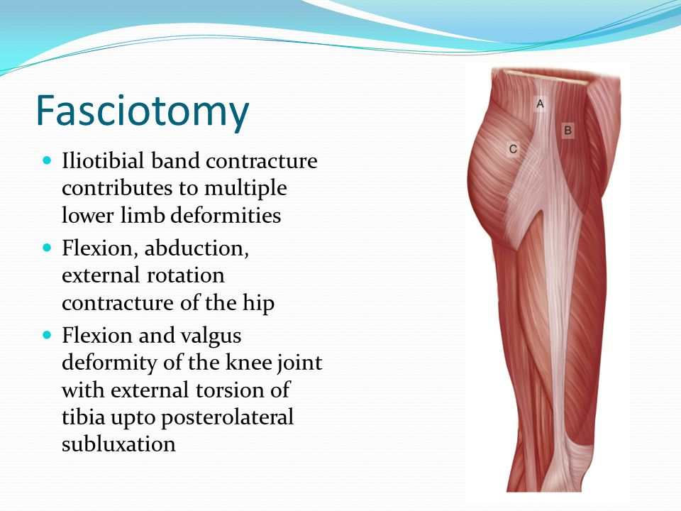 Fasciotomy Iliotibial band contracture contributes to multiple lower limb deformities. Flexion, abduction, external rotation contracture of the hip.