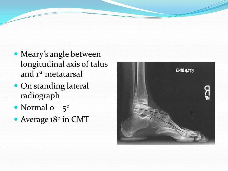 Meary's angle between longitudinal axis of talus and 1st metatarsal