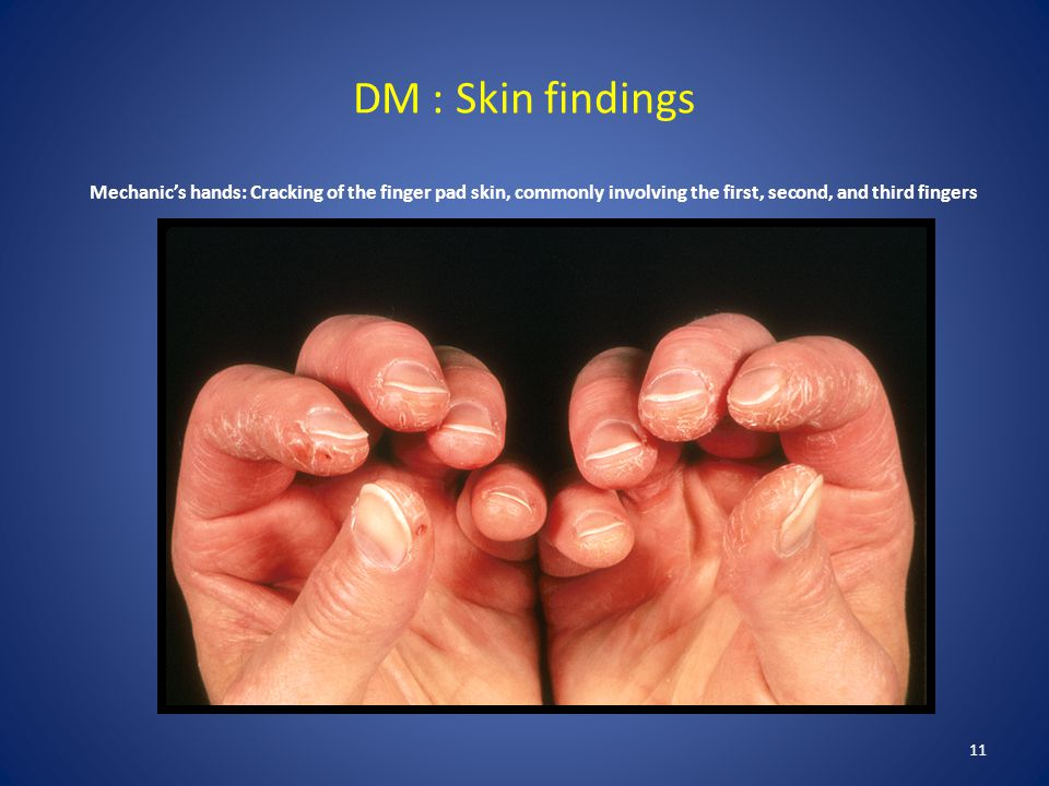 DM : Skin findings Mechanic's hands: Cracking of the finger pad skin, commonly involving the first, second, and third fingers.