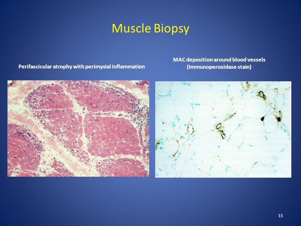 Muscle Biopsy Perifascicular atrophy with perimysial inflammation. MAC deposition around blood vessels (Immunoperoxidase stain)