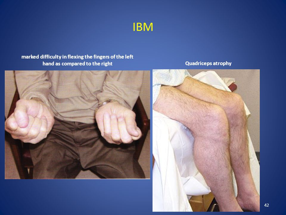 IBM marked difficulty in flexing the fingers of the left hand as compared to the right. Quadriceps atrophy.