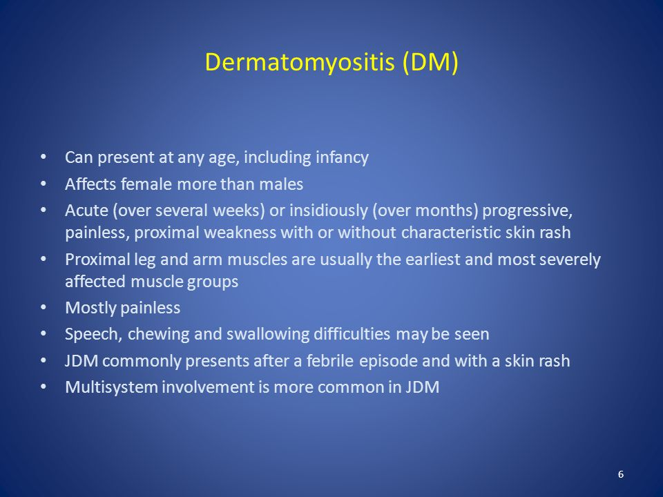 Dermatomyositis (DM) Can present at any age, including infancy