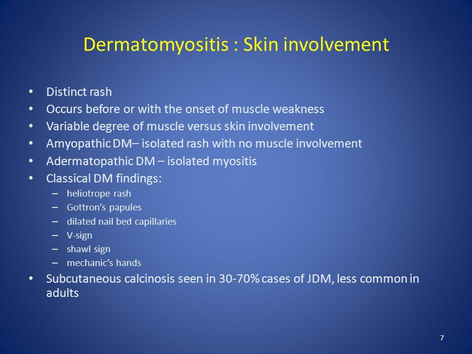 Dermatomyositis : Skin involvement