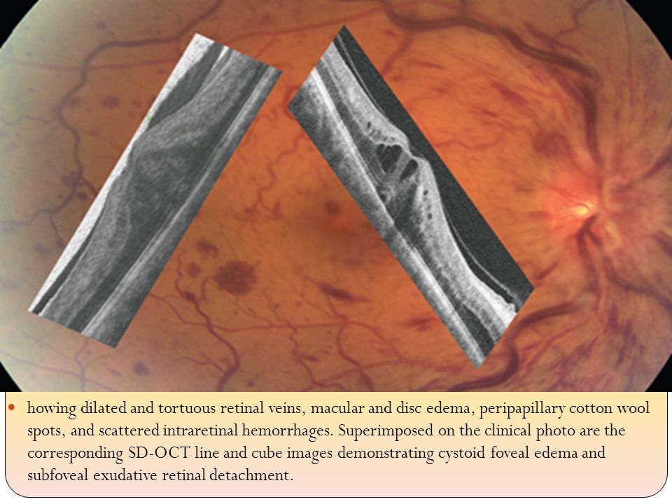 howing dilated and tortuous retinal veins, macular and disc edema, peripapillary cotton wool spots, and scattered intraretinal hemorrhages.
