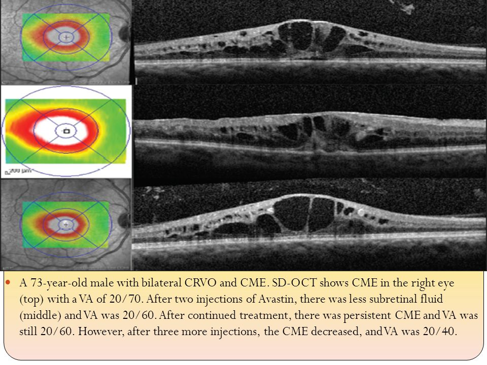 A 73-year-old male with bilateral CRVO and CME