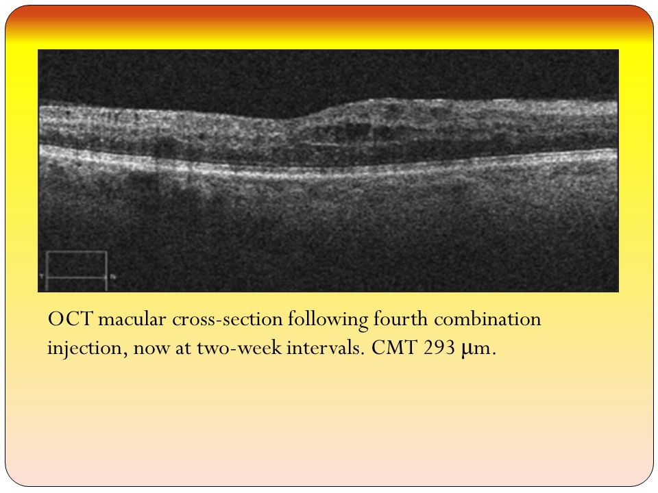 OCT macular cross-section following fourth combination injection, now at two-week intervals.