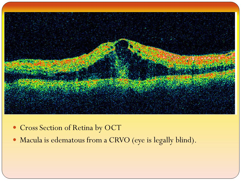 Cross Section of Retina by OCT