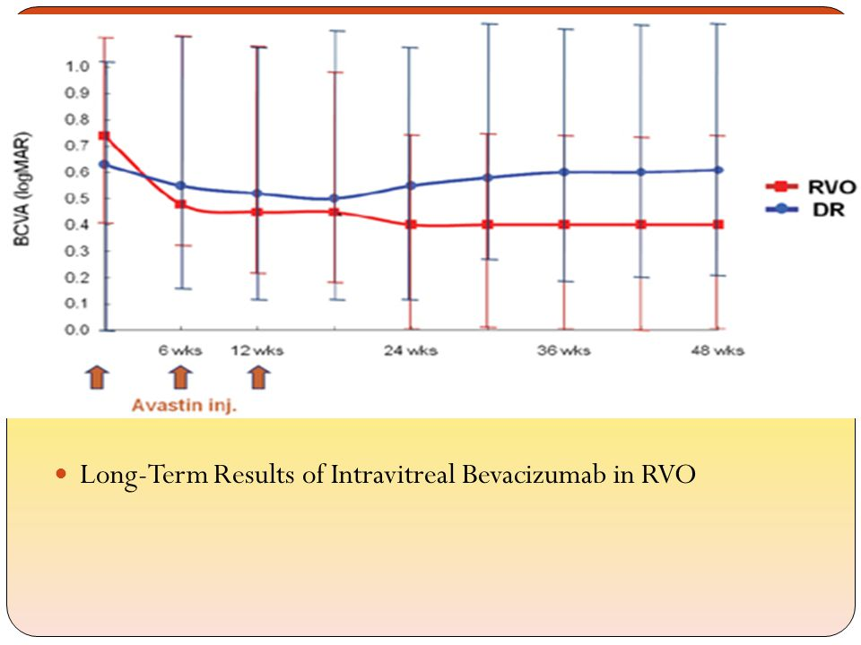 Long-Term Results of Intravitreal Bevacizumab in RVO