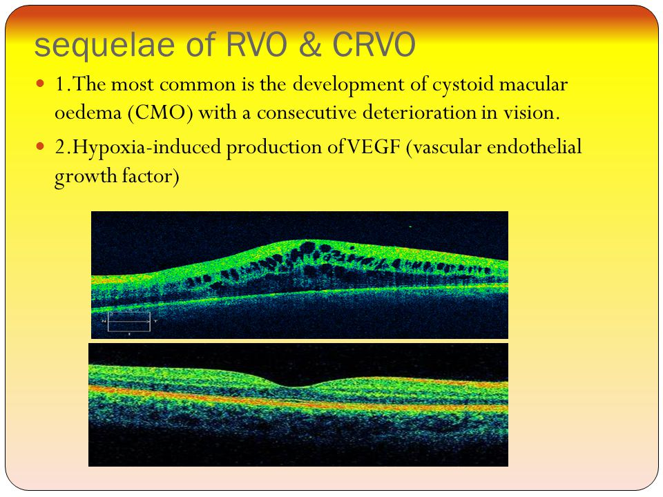 sequelae of RVO & CRVO 1.The most common is the development of cystoid macular oedema (CMO) with a consecutive deterioration in vision.