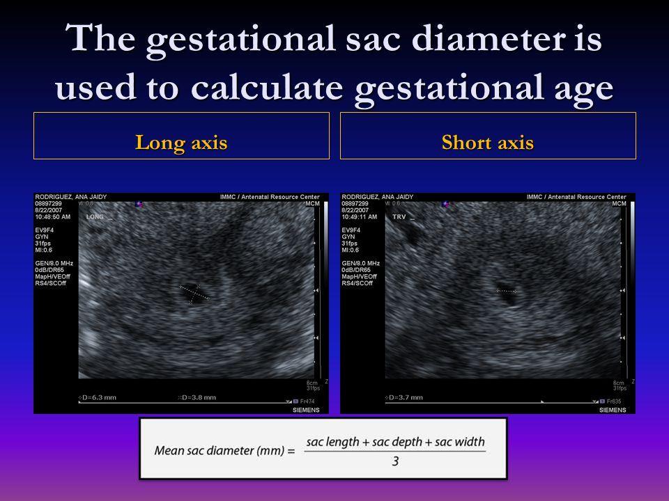 The gestational sac diameter is used to calculate gestational age