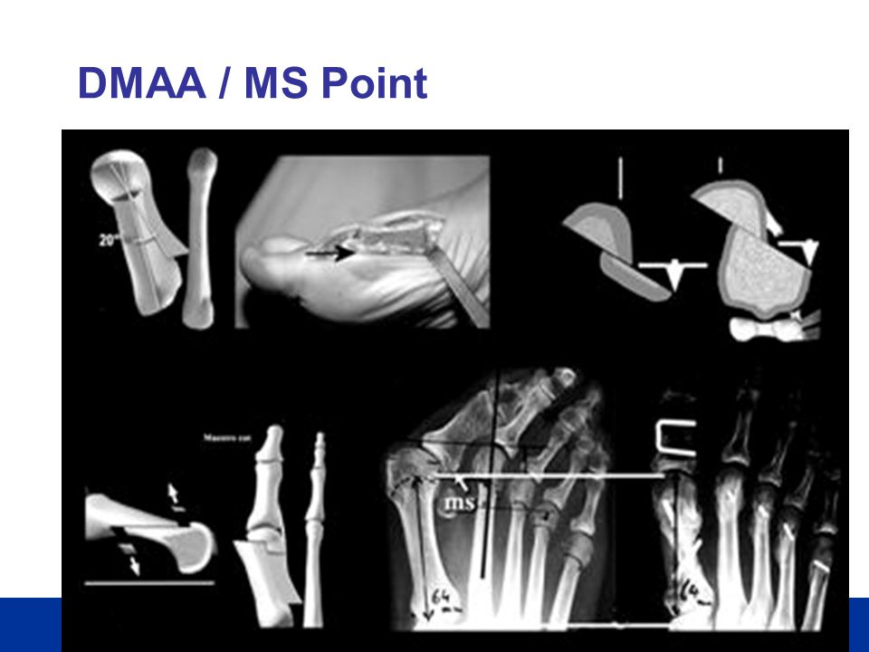 DMAA / MS Point
