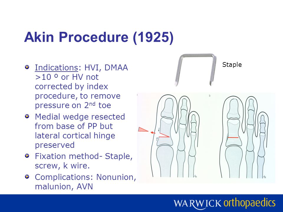 Akin Procedure (1925) Staple. Indications: HVI, DMAA >10 º or HV not corrected by index procedure, to remove pressure on 2nd toe.
