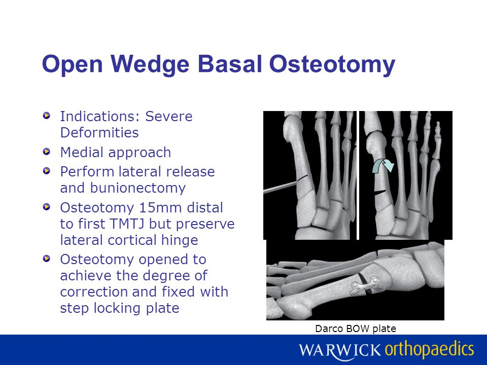 Open Wedge Basal Osteotomy